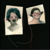 2 Photos of faces with noses cut out and sewn with red thread