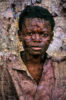 boy with peeling walls